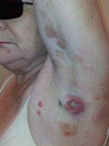 Т клеточная лимфома кожи грибовидный микоз