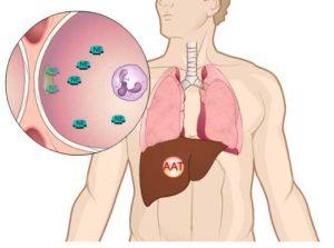 Дефицит альфа-1-антитрипсина